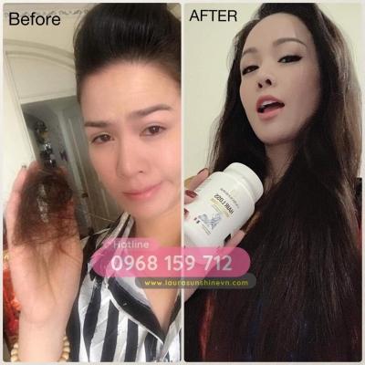 Viên uống mọc đen tóc Laura Sunshine Hair Loss 2
